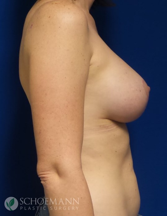 Breast Augmentation with Lift After 250cc Implants and Lift