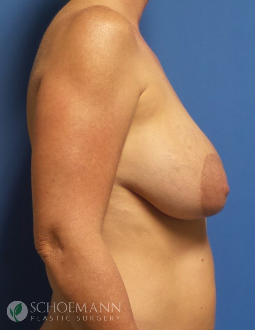 New Implants with Mastopecy Before