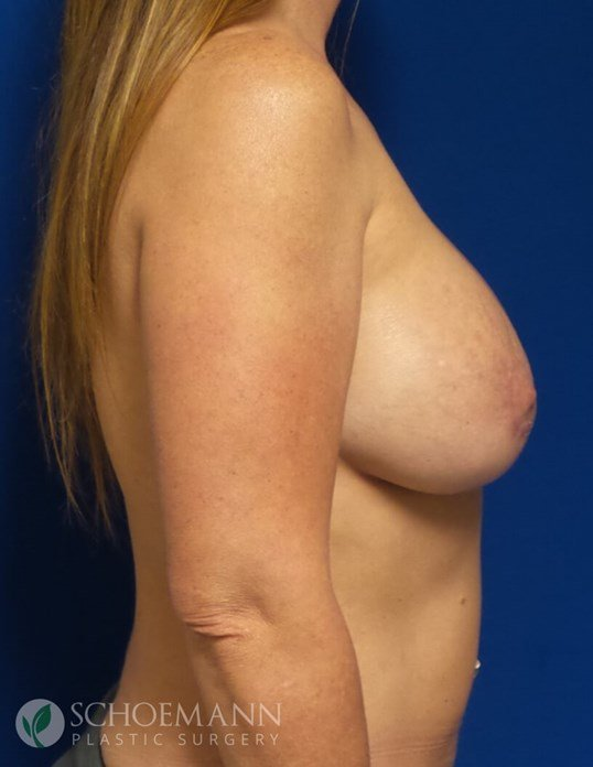 New Implants with Mastopecy After New Implants and Lift