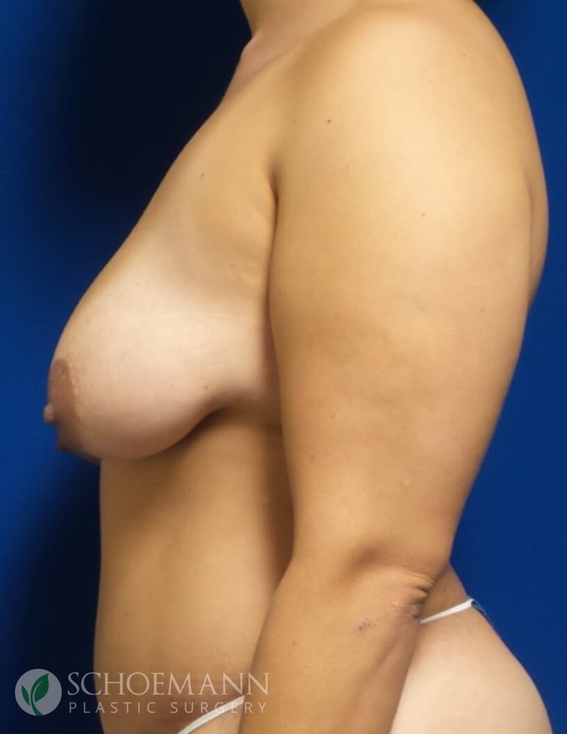 Breast Lift Without Implants Breast Ptosis Asymmetry Before