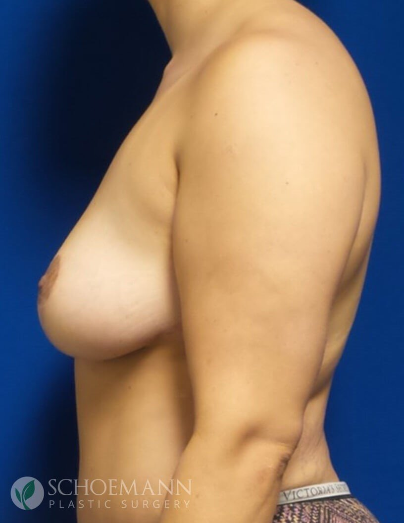Breast Lift Without Implants After Full Mastopexy