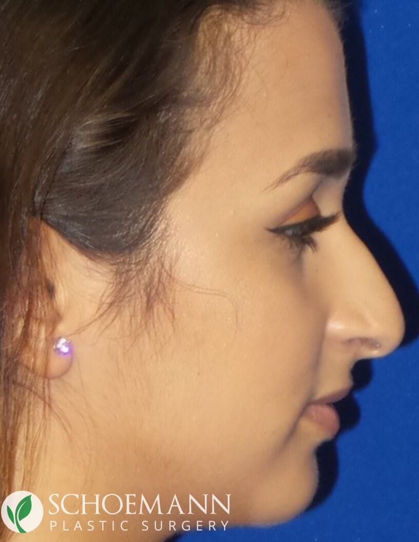 Rhinoplasty for Hump Reduction Before