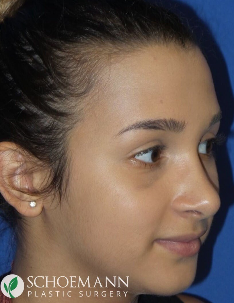 Rhinoplasty for Hump Reduction After
