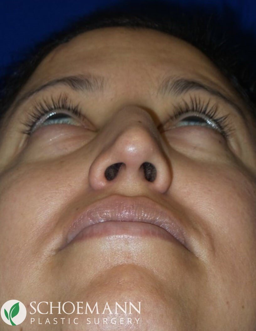 Rhinoplasty Upward View Before