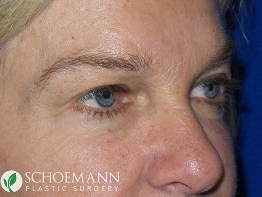 Blepharoplasty Quarter View Before
