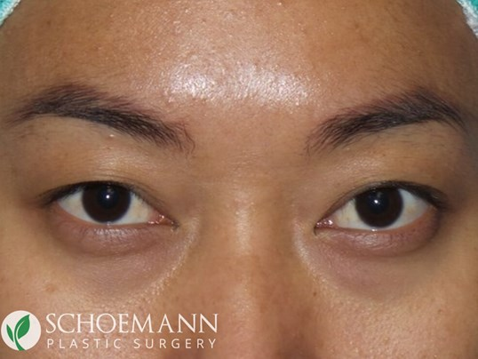 Asian Blepharoplasty Before