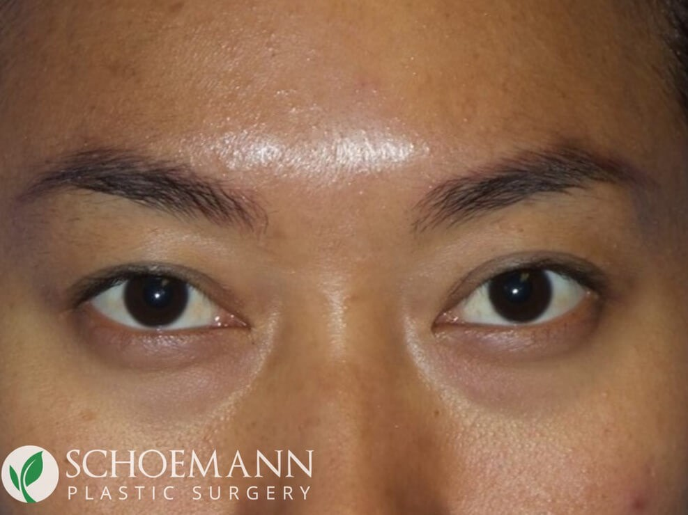 Asian Blepharoplasty After