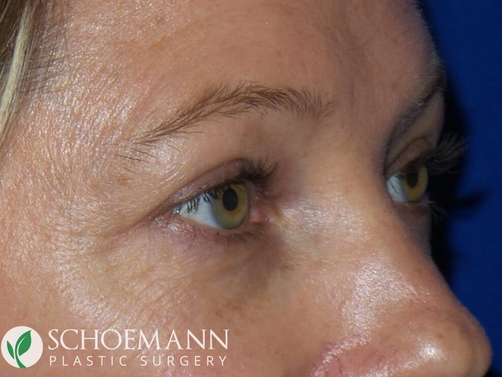 Blepharoplasty Quarter View After