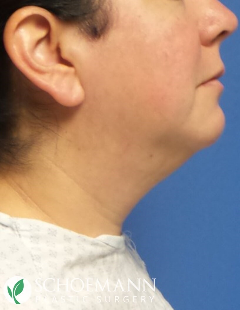 Neck Liposuction Side View Before