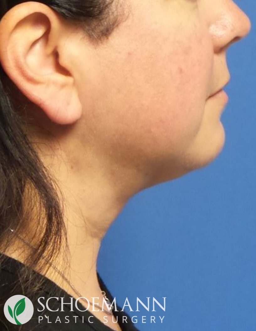 Neck Liposuction Side View After Liposuction of Neck