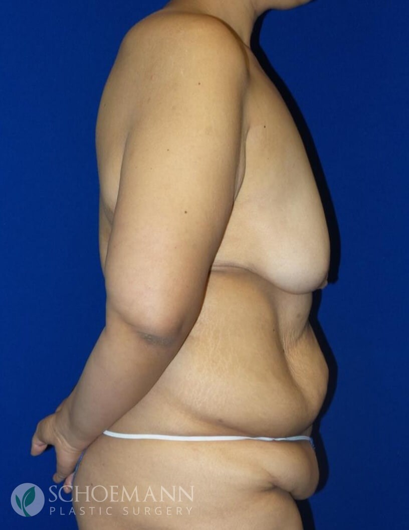 Circumferential body lift Before
