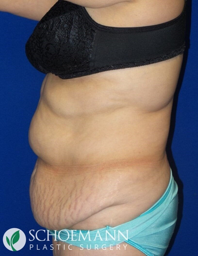 Abdominoplasty side view Before