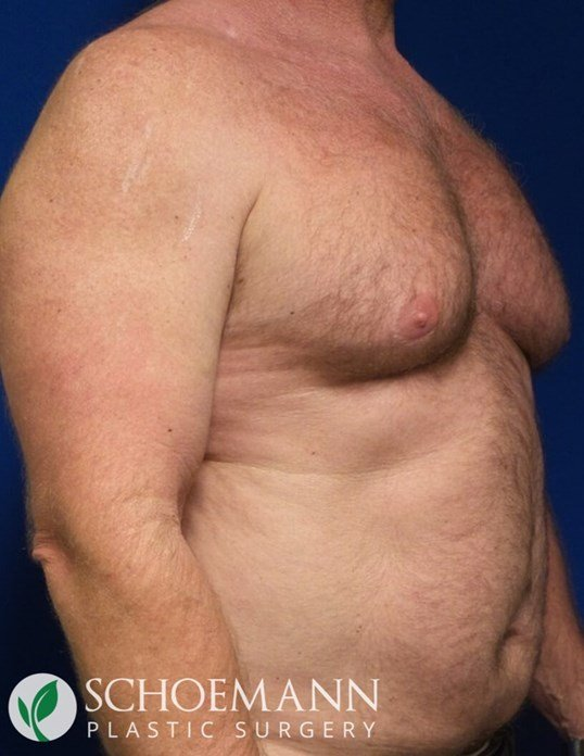 Gynecomastia liposuction Before
