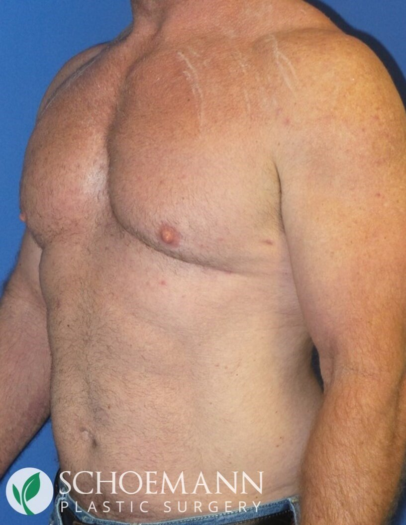 Gynecomastia liposuction After