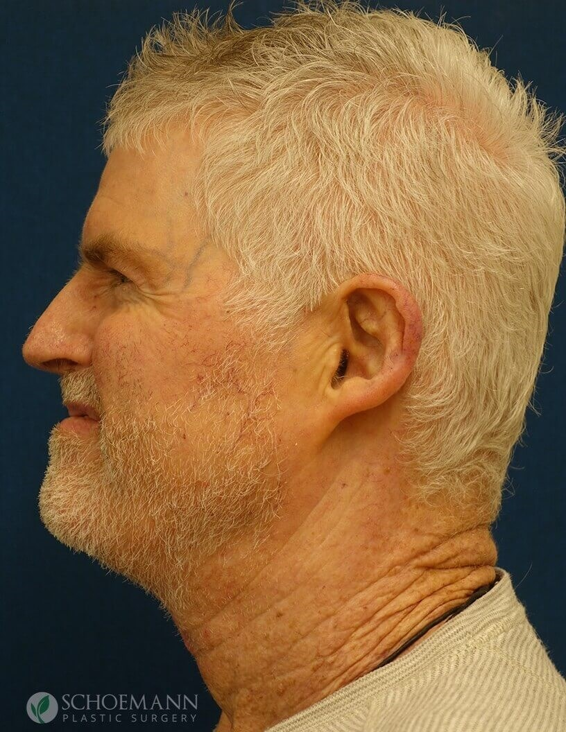Direct Neck Lift Side View After