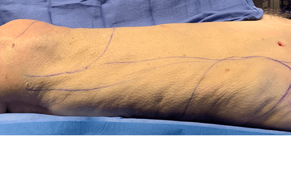 Manual Lipedema Extraction in Beverly Hills, CA