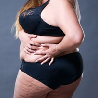 What is Lipedema?