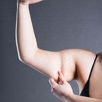 Lymphatic Sparing Arm Lift