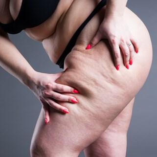 Lymphatic Sparing Thigh Lift