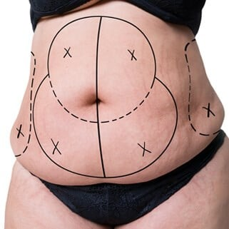 Tummy Tuck for Lipedema