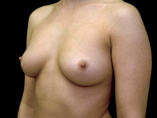 Breast Augmentation Surgery Before Breast Implants