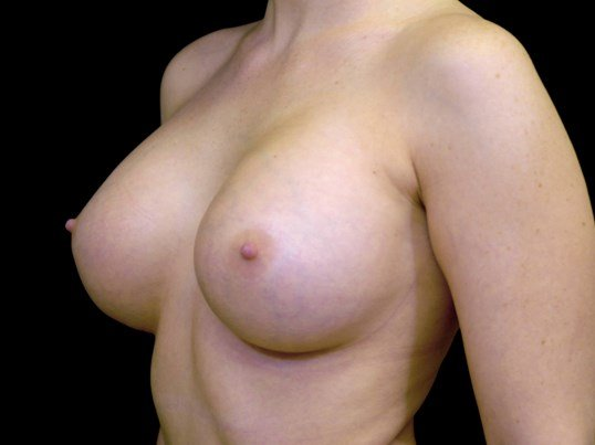 Breast Augmentation Surgery After Breast Implants