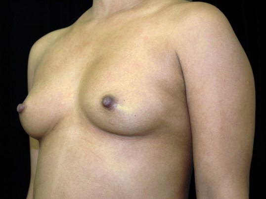 Breast Augmentation Procedure Before Breast Implants