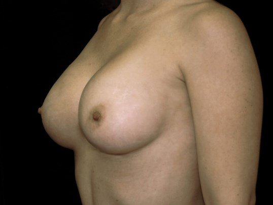 Breast Augmentation Procedure After Breast Implants