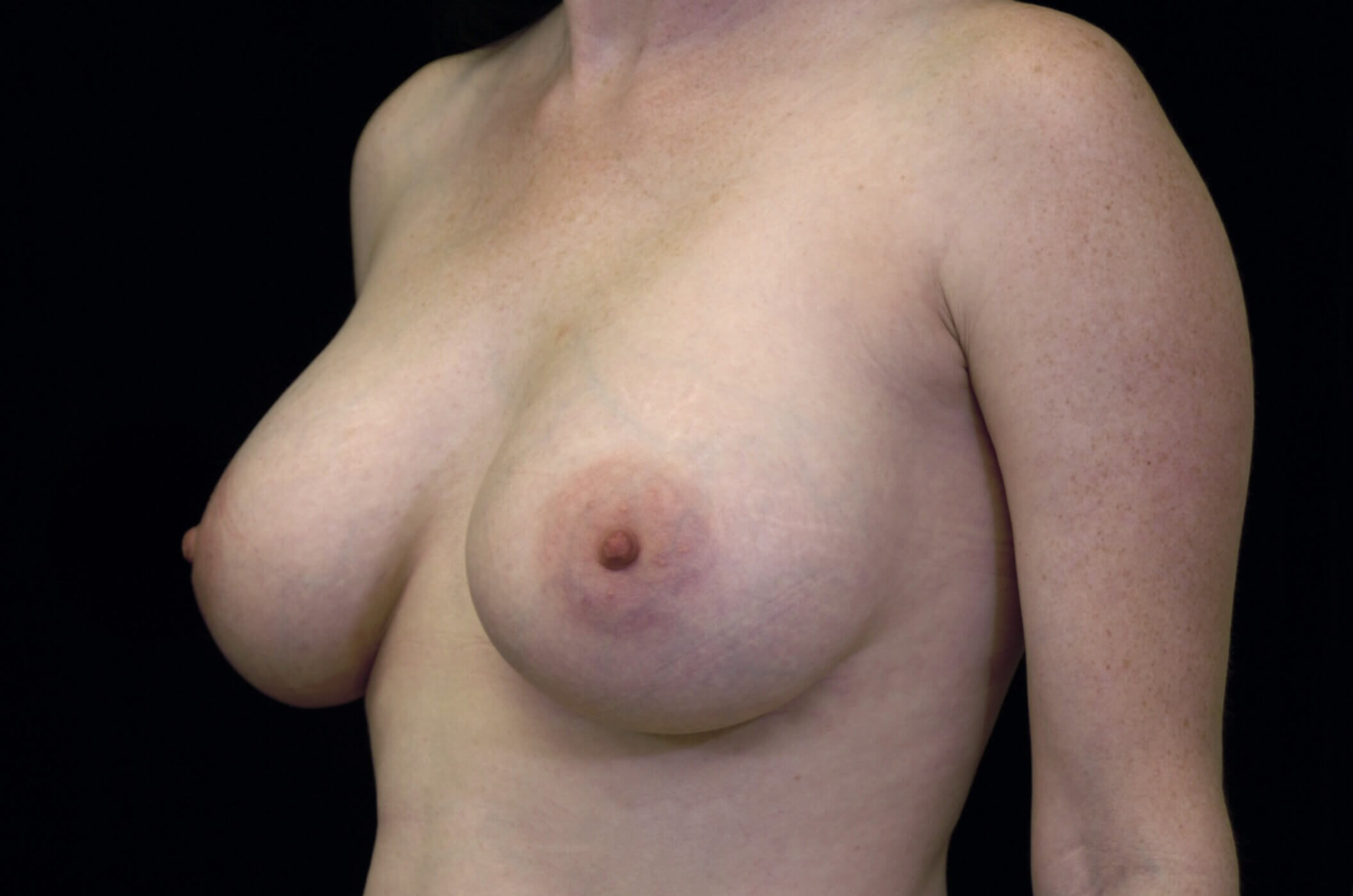 Breast Augmentation Procedure After Breast Augmentation