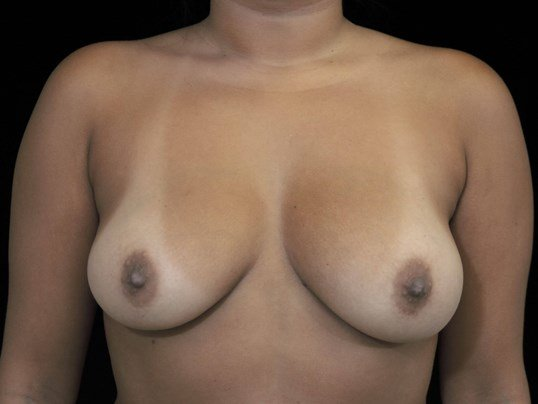 Breast Augmentation Procedure Before Saline Implants