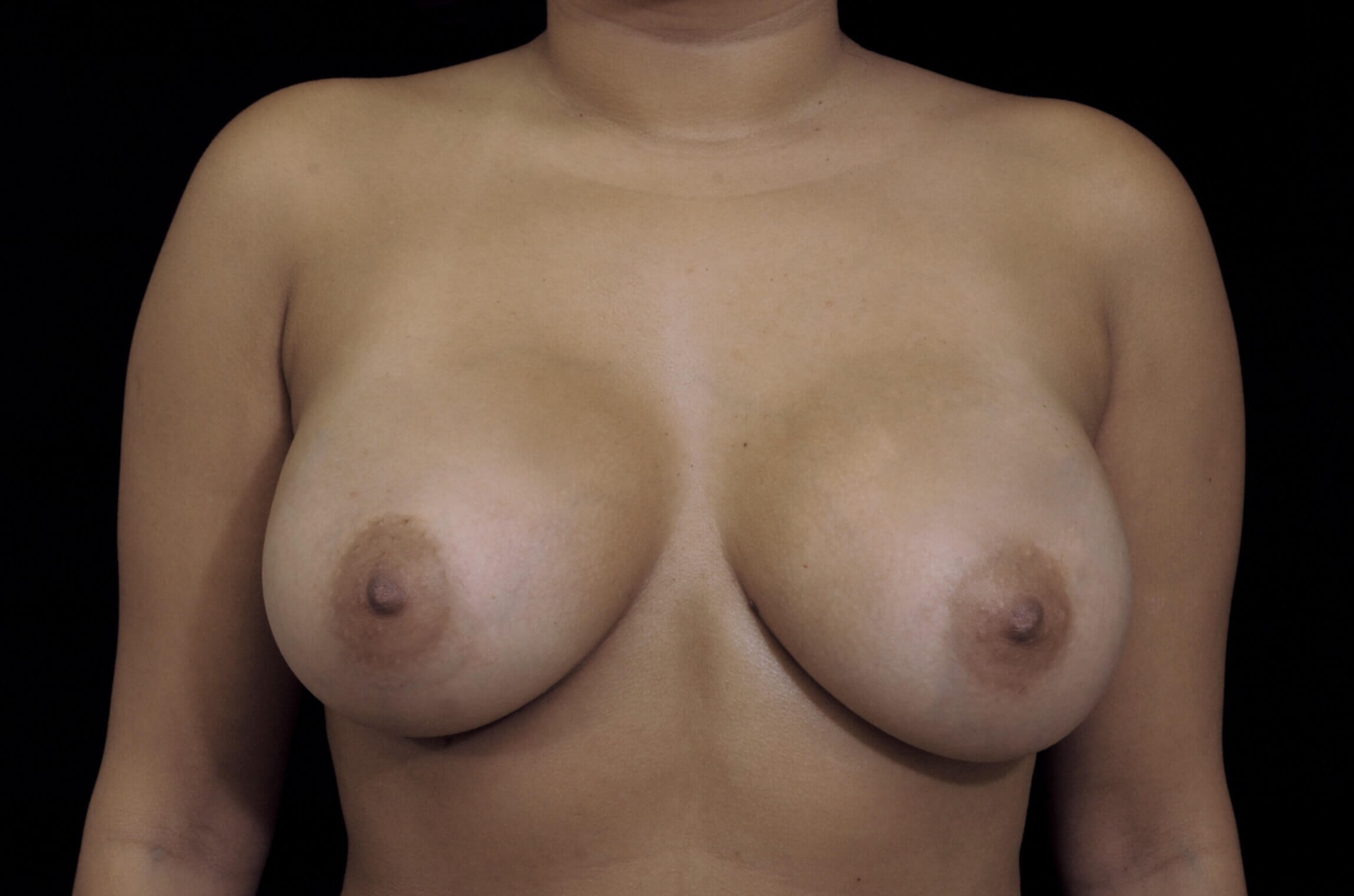 Breast Augmentation Procedure After Saline Implants