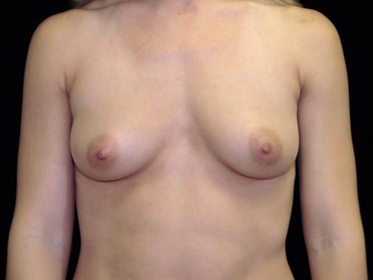 Breast Augmentation Procedure Before Silicone Gel Implants