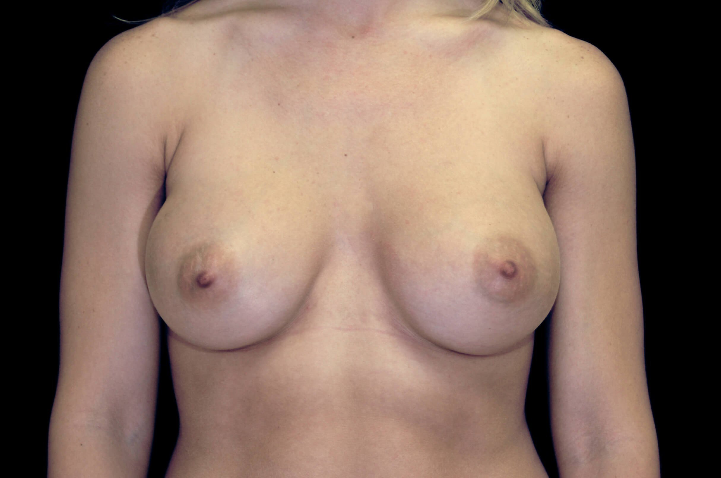 Breast Augmentation Procedure After Silicone Gel Implants
