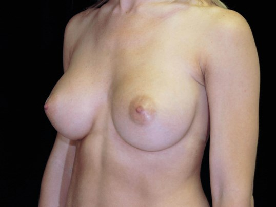 Breast Augmentation Procedure After