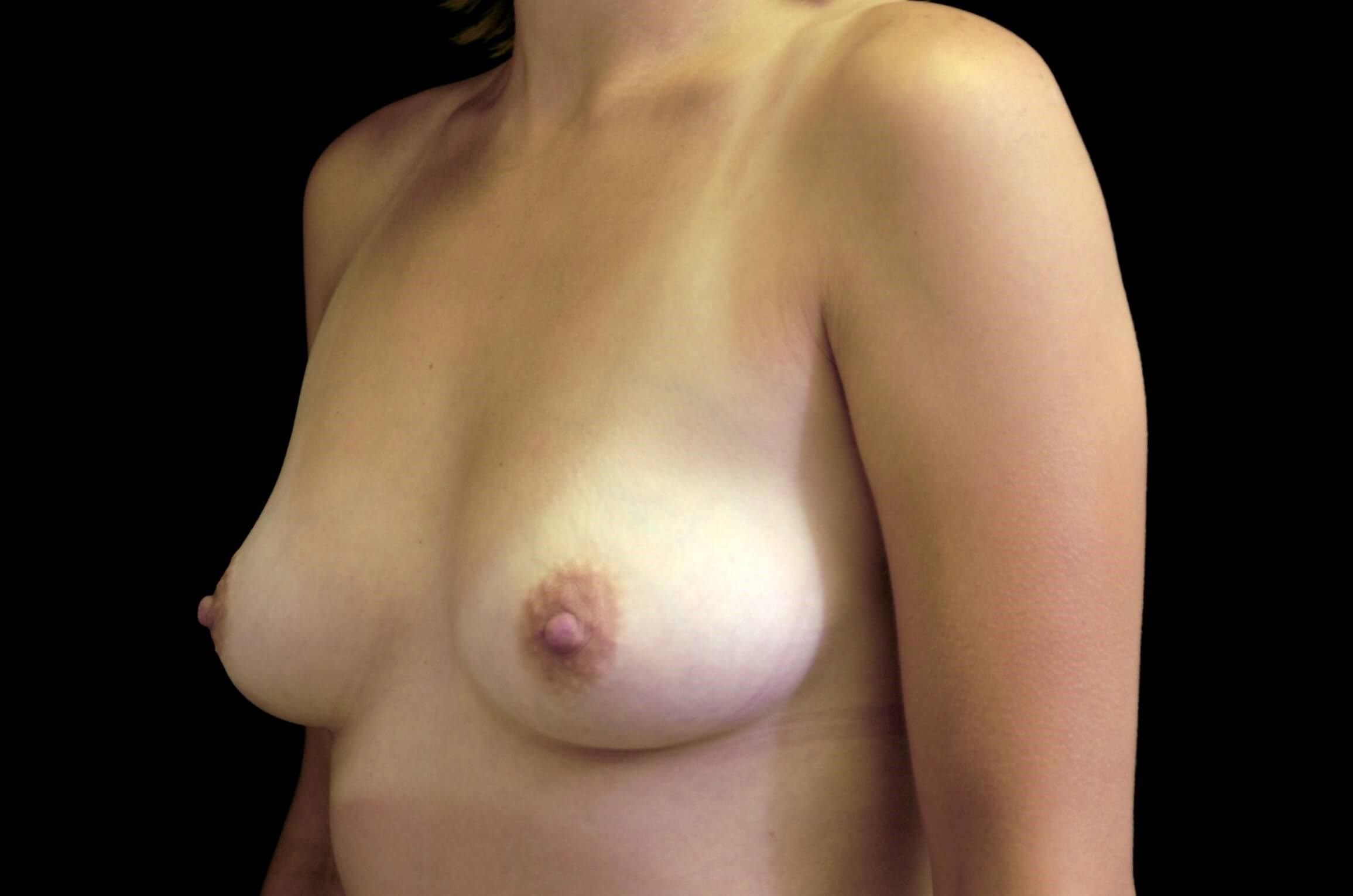 Breast Augmentation Procedure Before