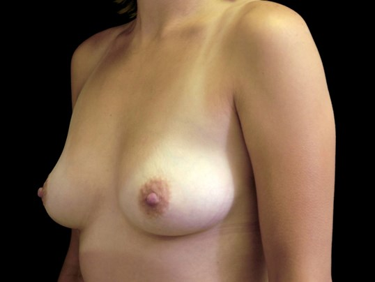 Breast Augmentation Procedure Before Breast Augmentation