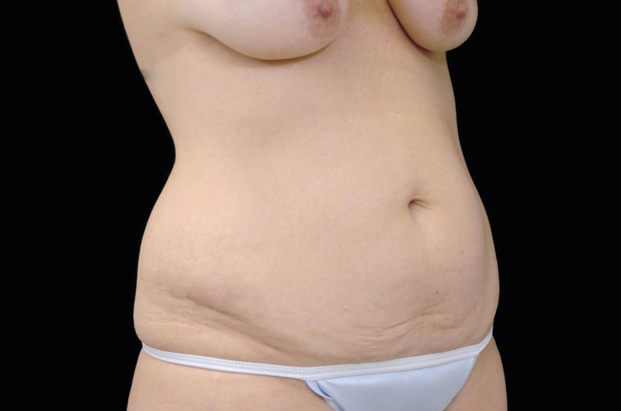 Tummy Tuck Procedure Before