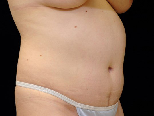 Tummy Tuck Procedure After