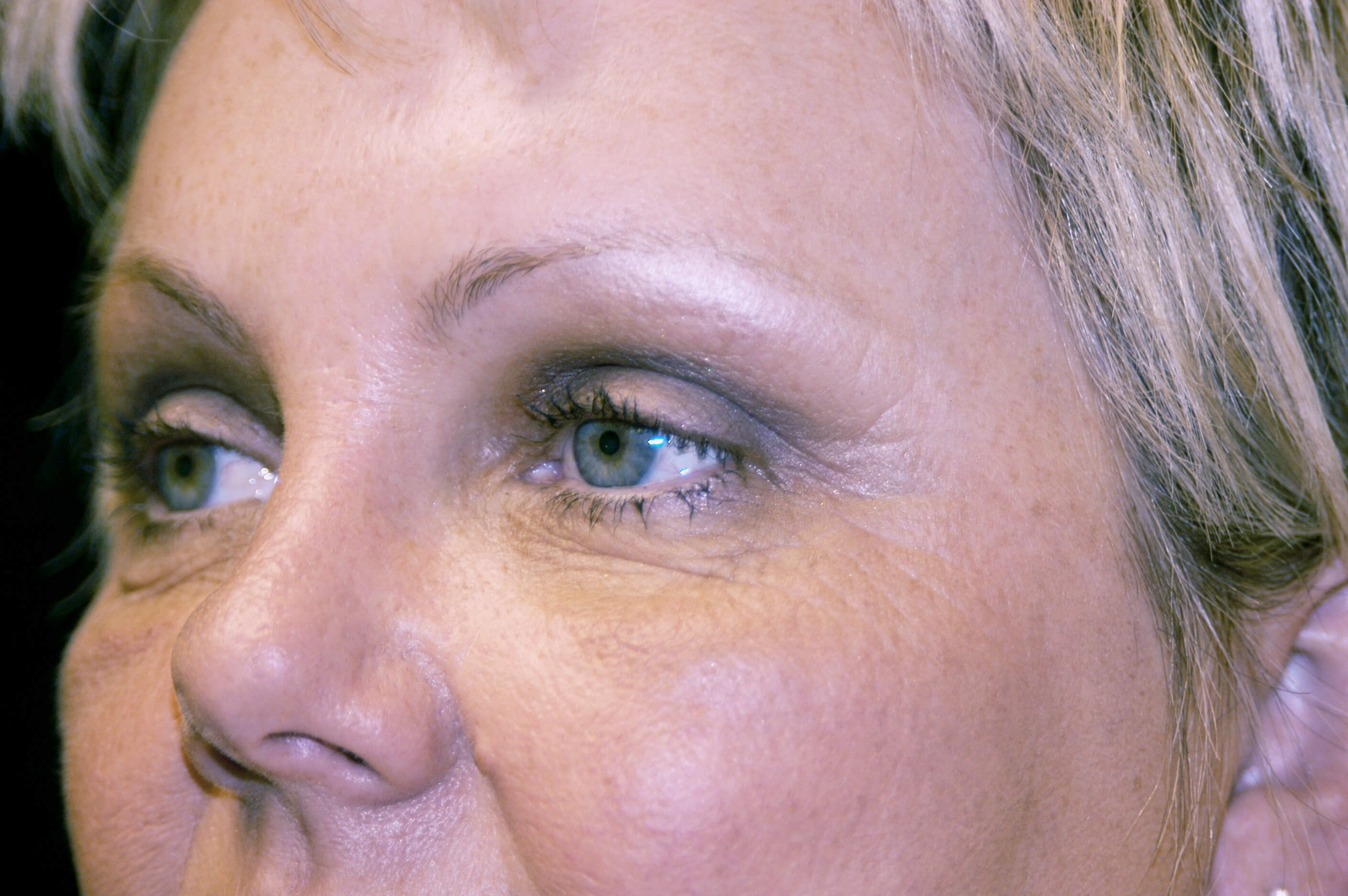 Brow Lift Procedure After