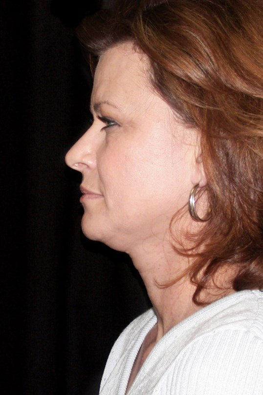 Facelift Procedure Before