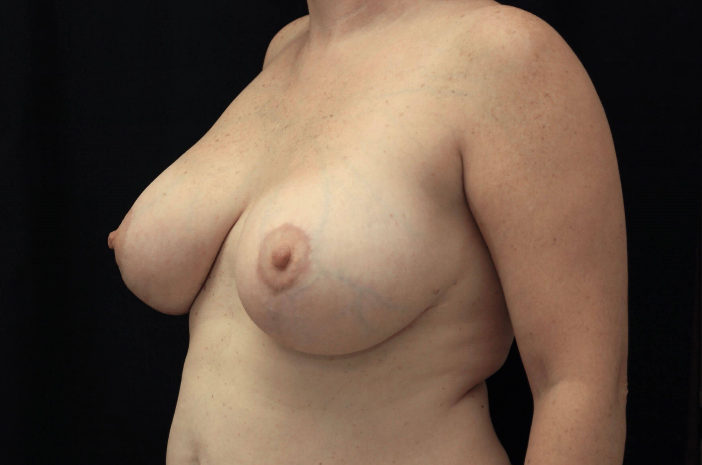 Breast Reduction with Implants After Breast Aug/Reduction
