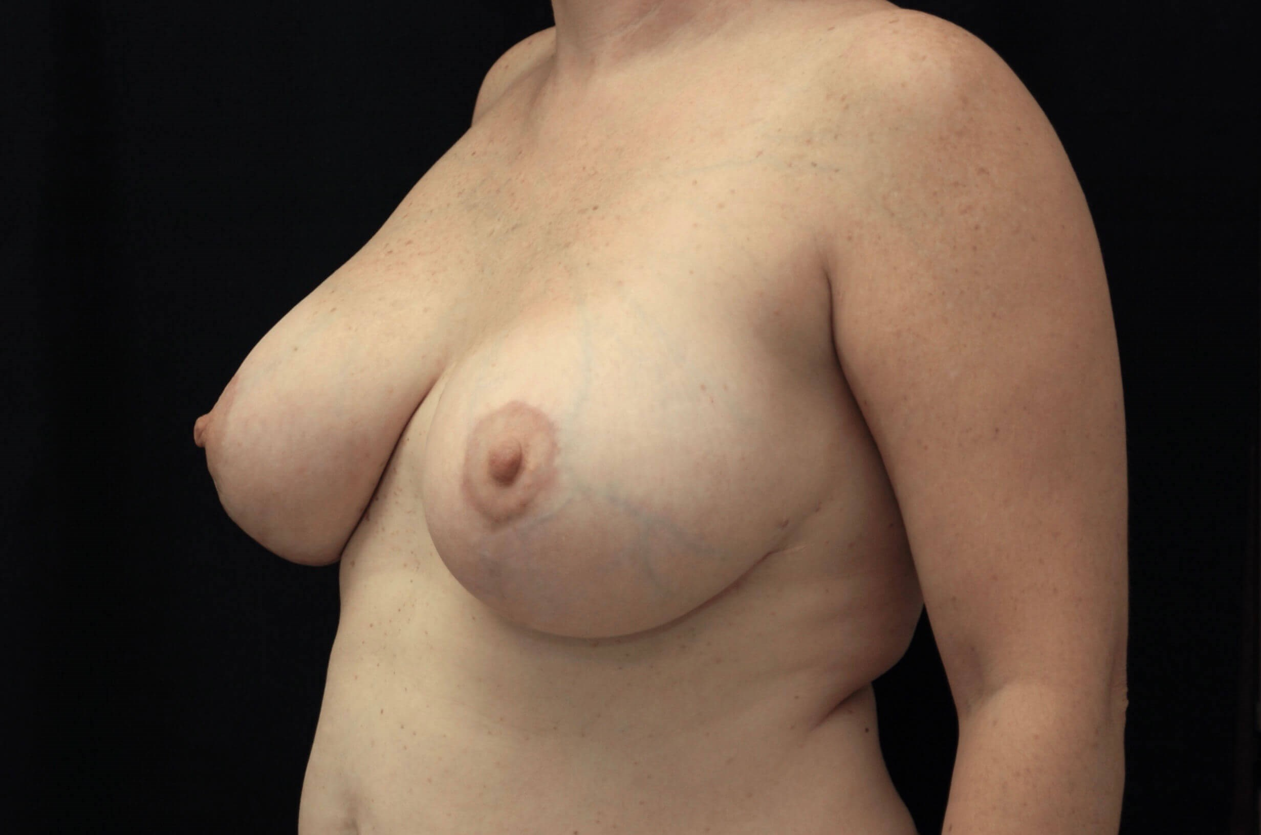Breast Reduction with Implants After