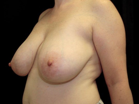 Breast Reduction with Implants Before Breast Aug/Reduction