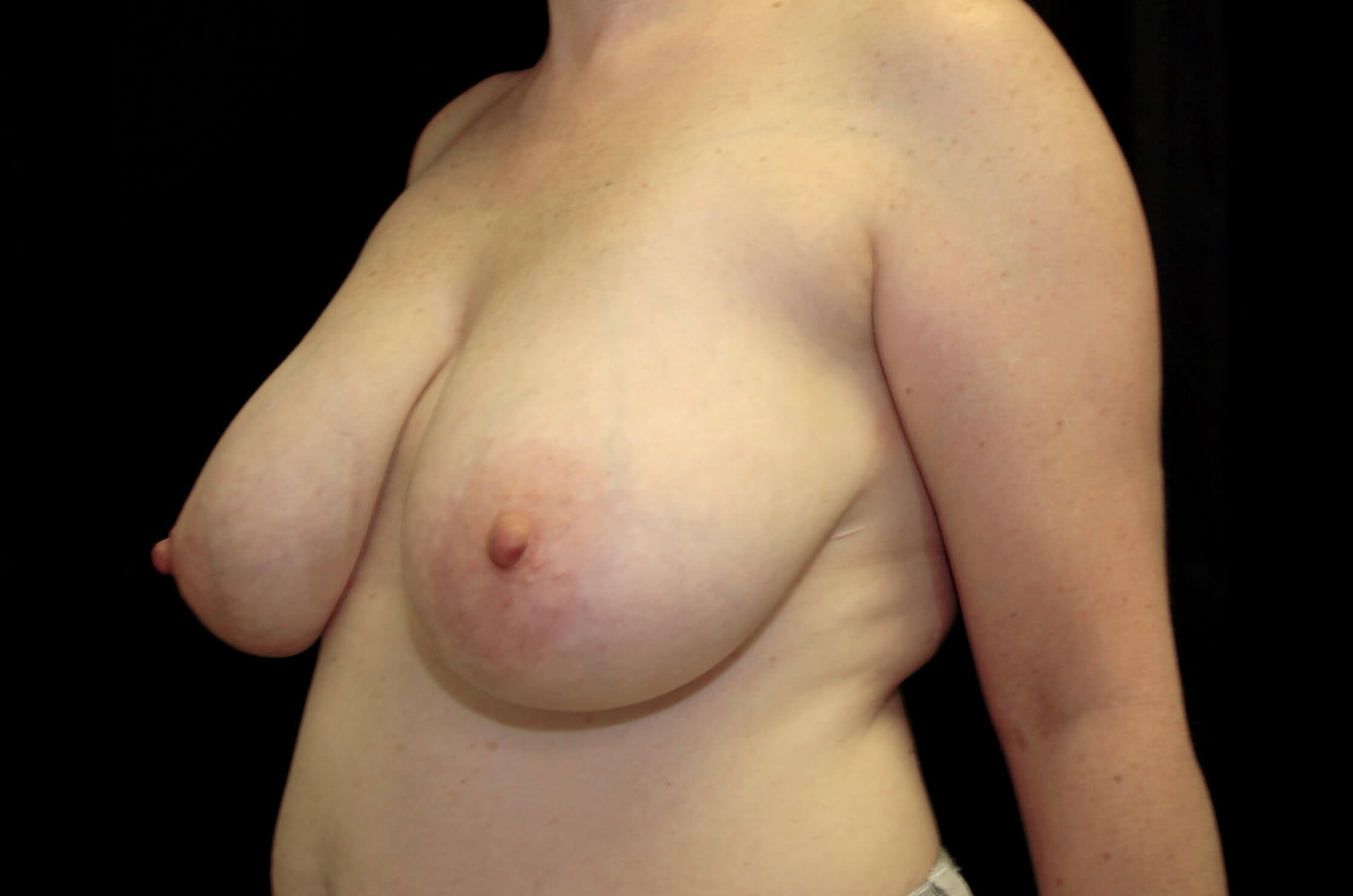 Breast Reduction with Implants Before