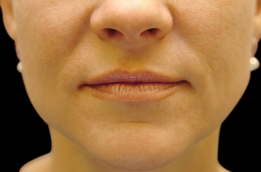 Restylane Lips and Smile Lines Before Restylane