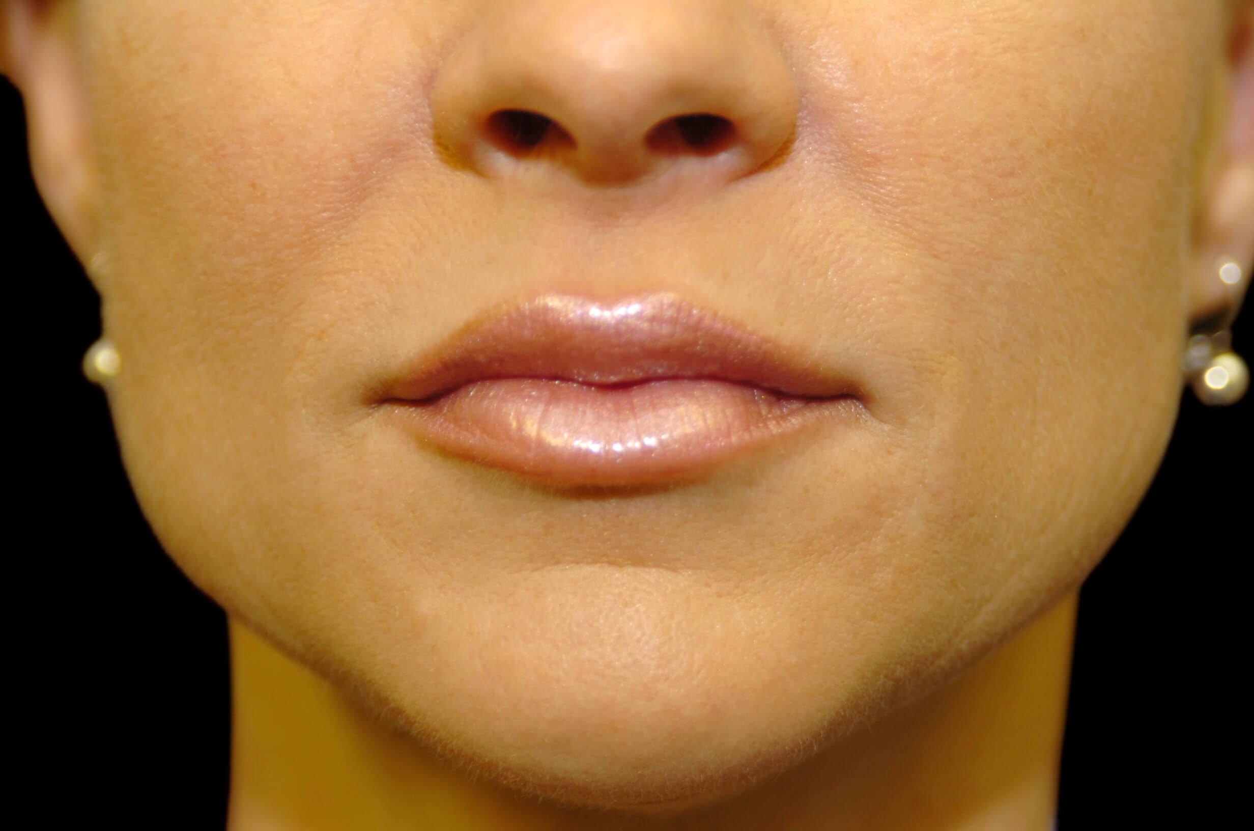 Restylane Lips and Smile Lines After Restylane
