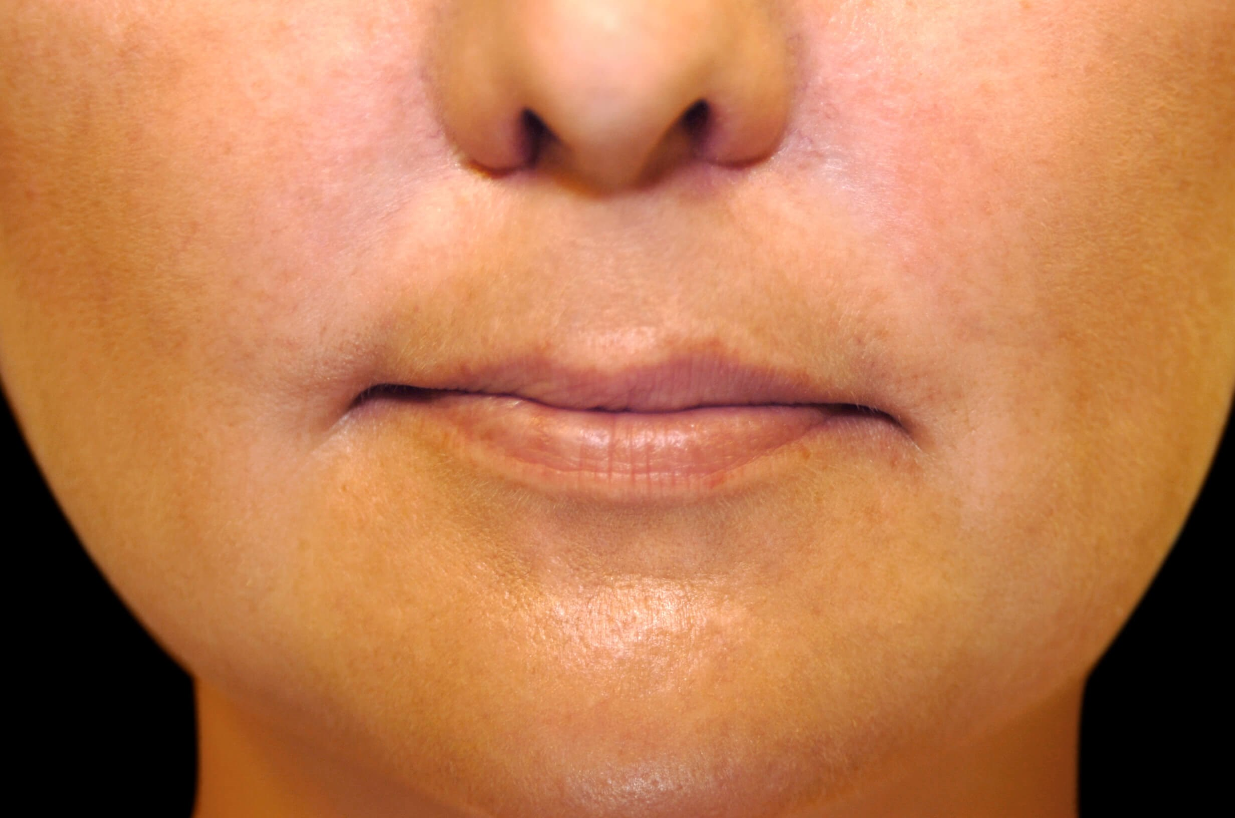 Restylane Lip Filler Before Restylane Lip Filler