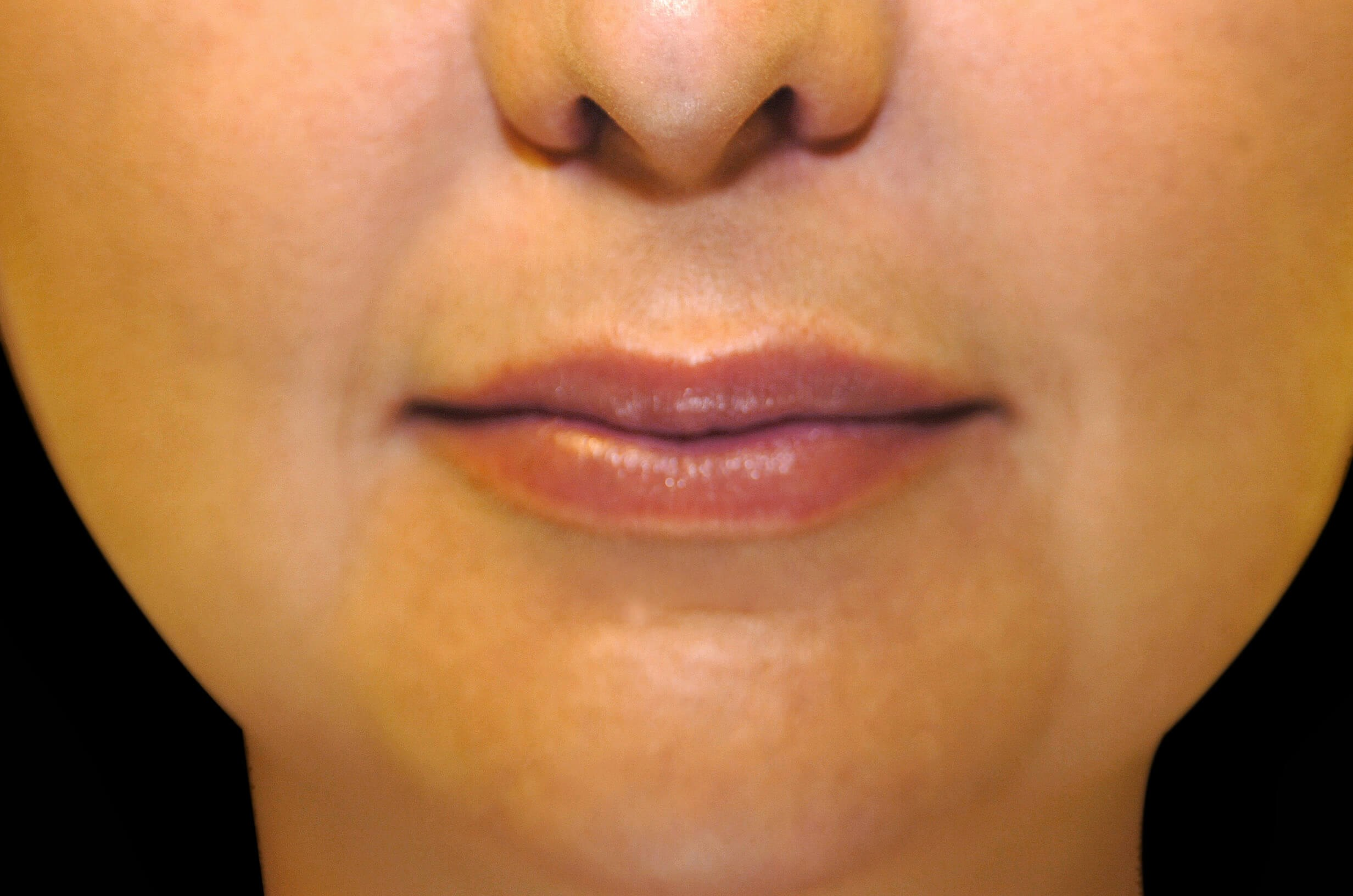 Restylane Lip Filler After Restylane Lip Filler