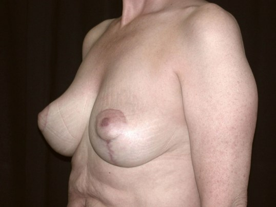 Breast Lift Procedure After