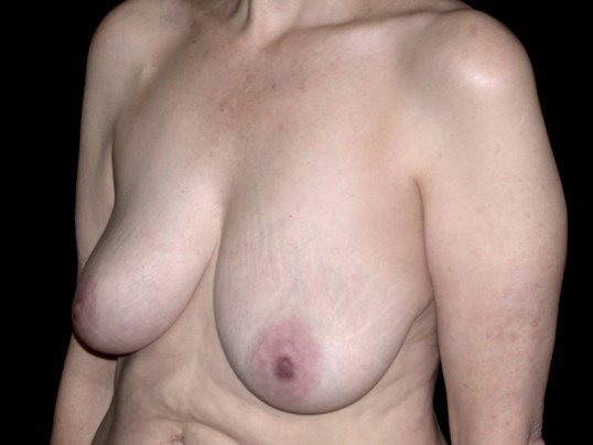 Breast Lift Procedure Before